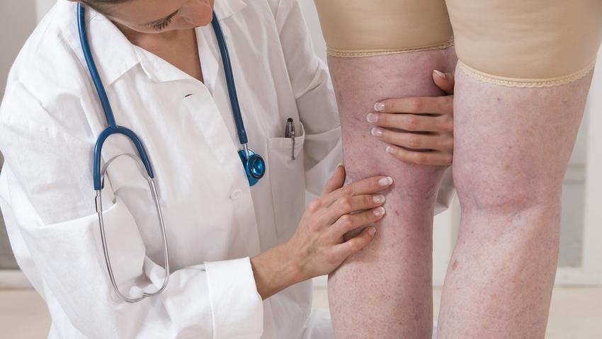 belső visszér a nőgyógyászatban