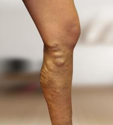 hogyan kell kezelni a haematomákat a visszér műtét után)