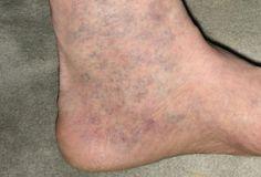 visszér a bal lábon hogyan kell kezelni haematoma a lábán visszeres