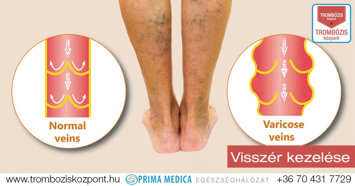 a láb kezelés visszér