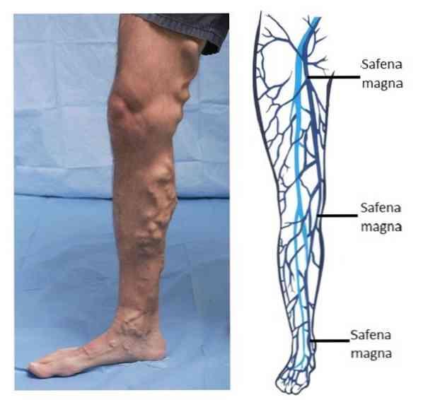 a varikózisos láb eltávolítása visszér a betegség oka