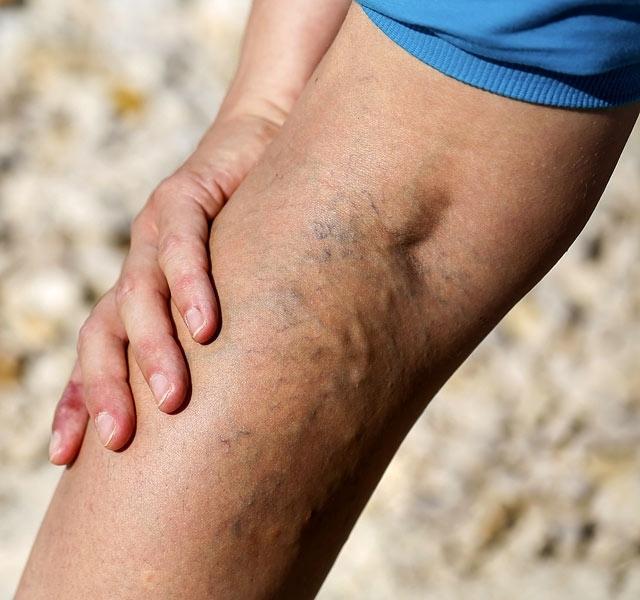 A lábvénás műtét veszélyes a varikoosákra?