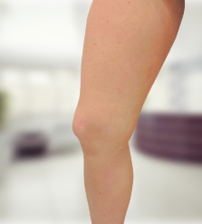 a lábakon visszeres olajok gyógyszerek és kenőcsök a visszér kezelésére