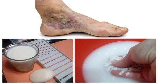 a láb visszér kezelése Penzában xarelto visszér ellen