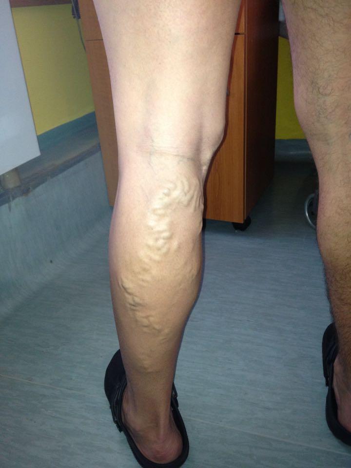 műtét után a láb visszér