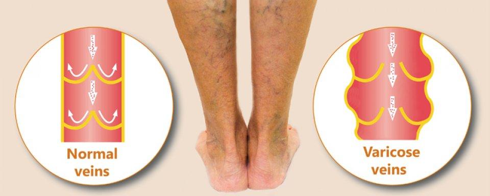 Mi okozhat ízületi merevséget?, Osteoarthritis duzzadt lábak kezelése