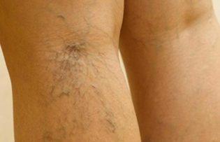 A lábakban lévő varikózusok: tünetek és kezelés