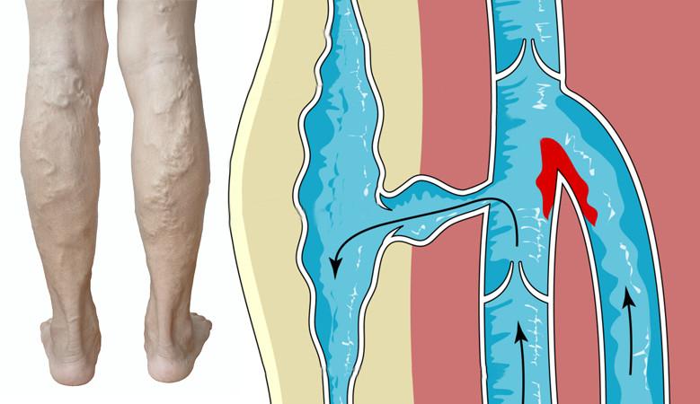 A neccharisnya – avagy érhálózat a lábon