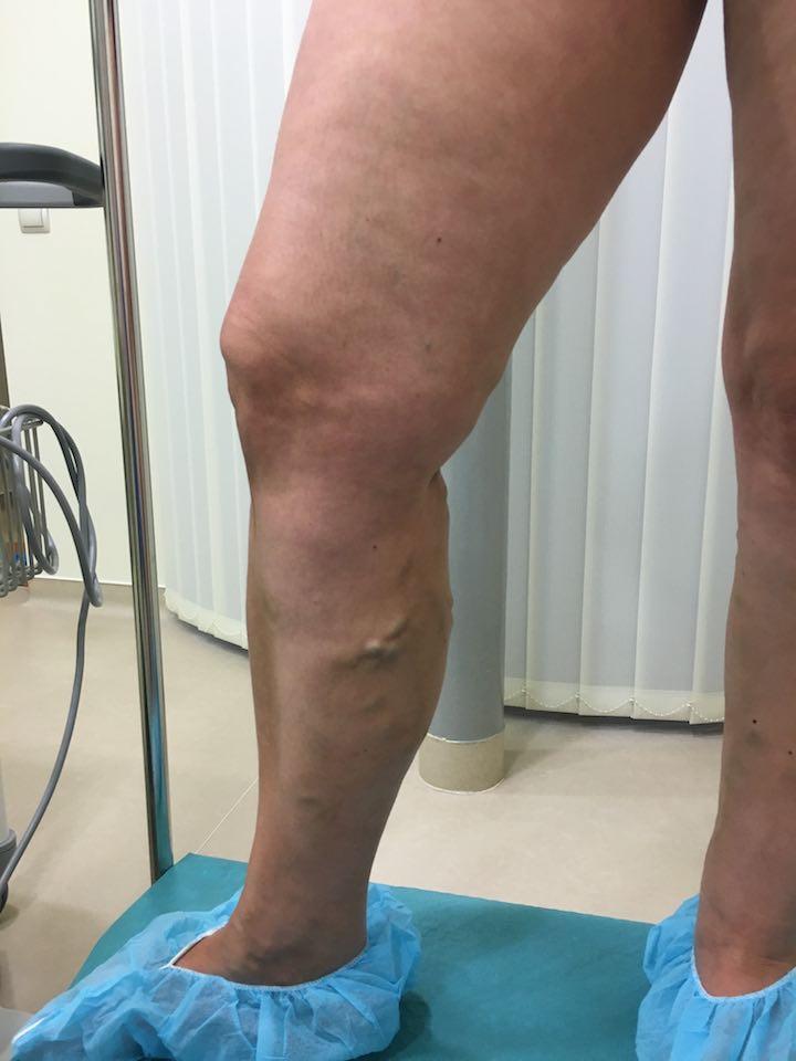 láb visszér műtét után