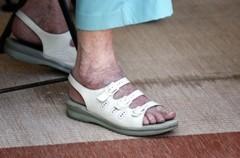 a lapos lábak és a visszér összekapcsolása