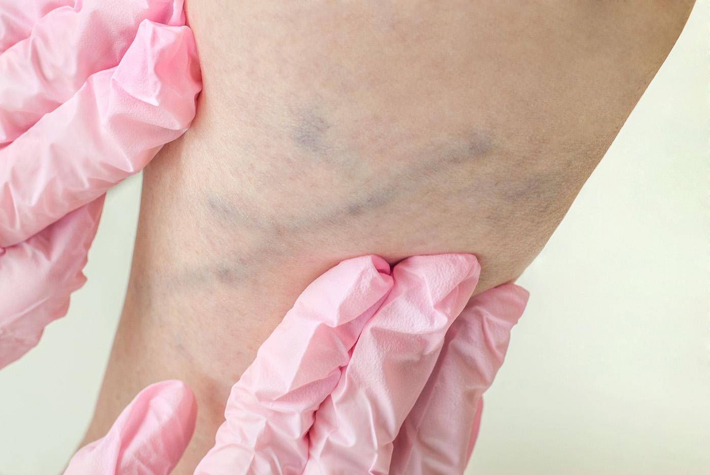 visszér, ahol a kezelést el kell kezdeni visszerek a lábakban okozzák és kezelik