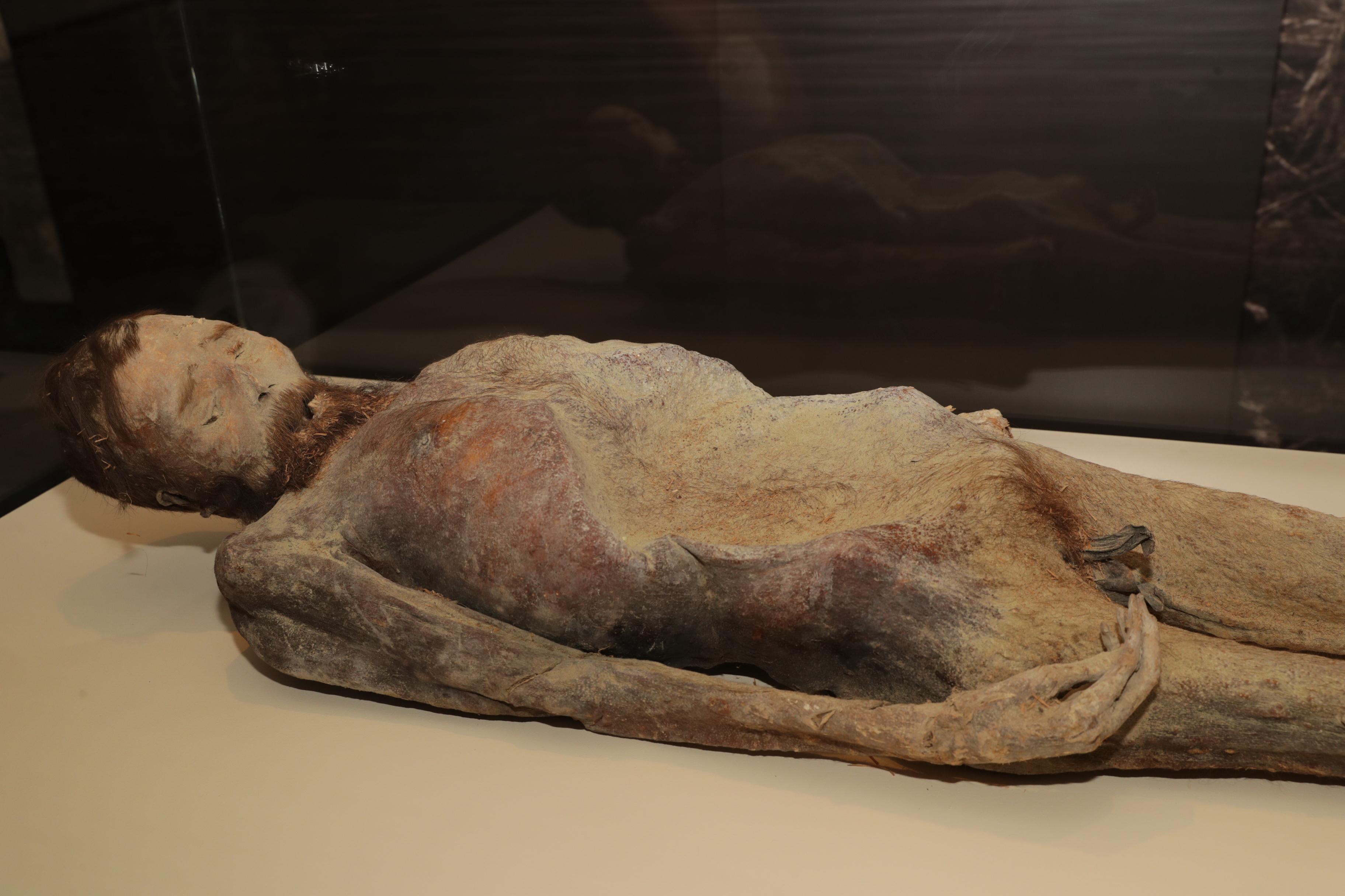 visszér múmia)