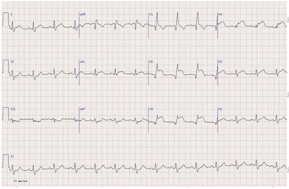 Diagnosztika, Aortaív MR angiográfia kontrasztanyagos vizsgálata - Diagnoszta