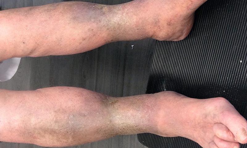 a lábak bőrének elszíneződése visszeres