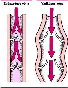 az alsó végtagok varikózus vénái terhes nőknél