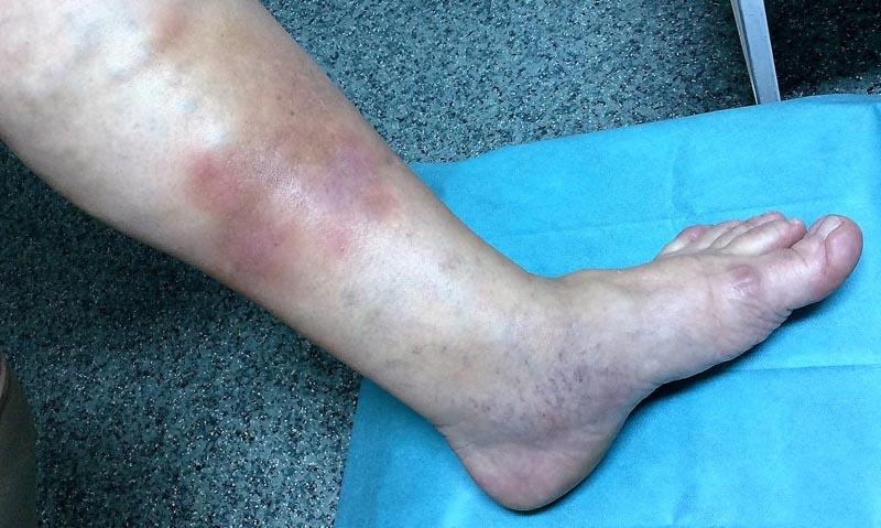 sötét foltok a lábakon visszérrel