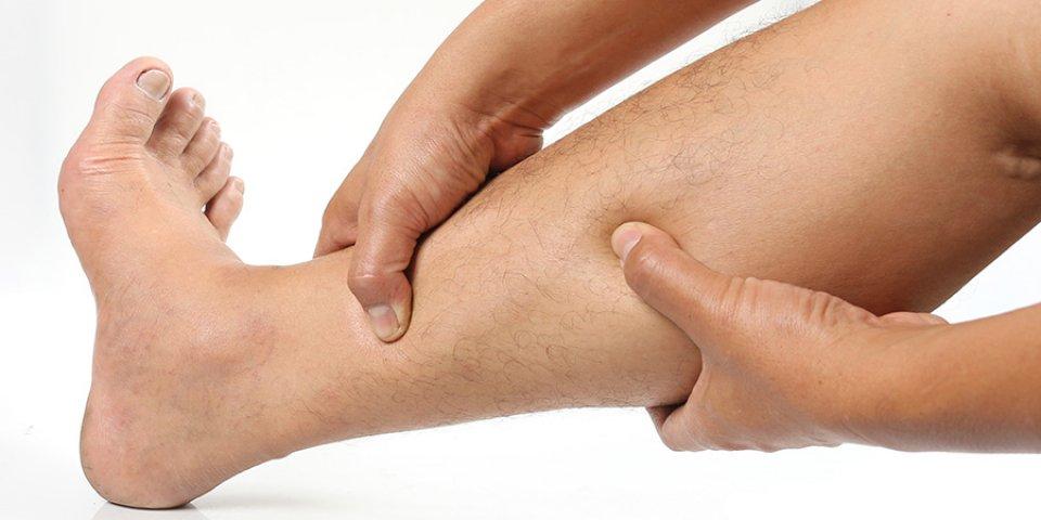 császármetszés visszér a lábakon