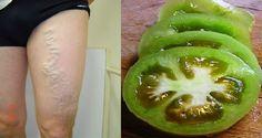Best Gyogyszer nélkül. images | egészség, gyógynövények, egészséges életmód