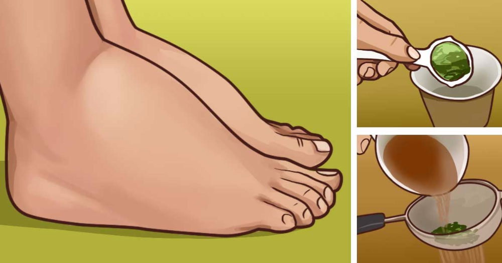 mit kell inni a visszerek terhesség alatt a lábak visszér és a fizikai aktivitás