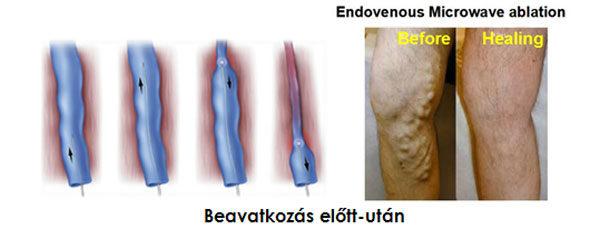 a kismedence ultrahangján visszér fog mutatkozni)