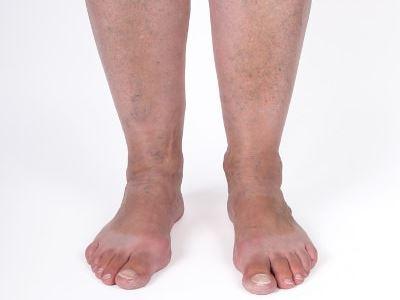 Visszeresek figyelem: jön a melegedés, és vele a lábfájdalom