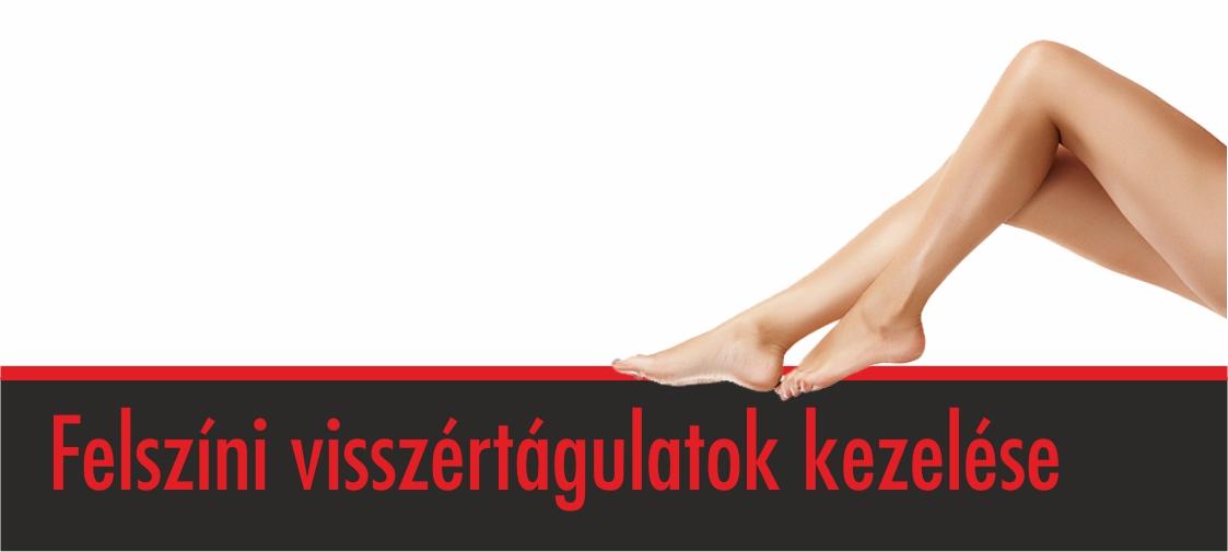 a visszér típusai és kezelésük módszerei)