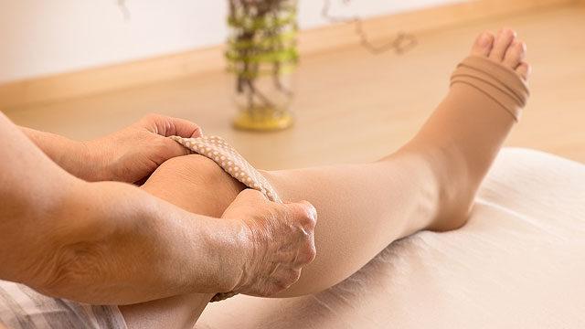 hogyan kezeli a visszeres láb ödémáját
