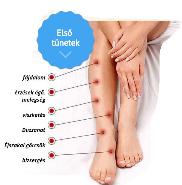 hogyan fáj a varikózis a lábakon)