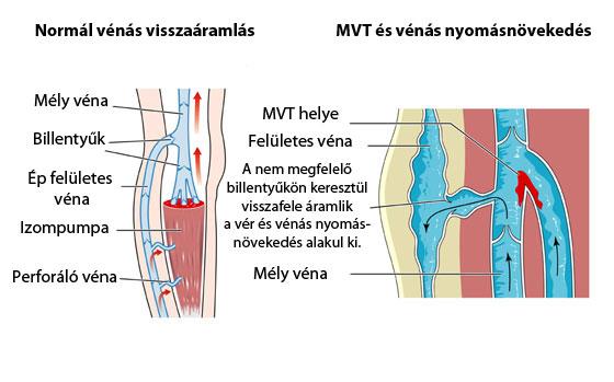 A vénás betegségek korszerű kezelése Eszéken
