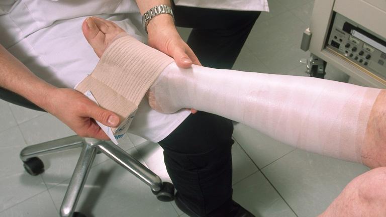 hogy a visszér műtét a lábát)