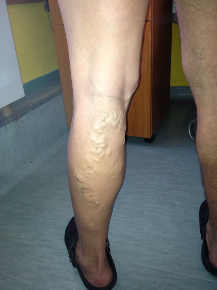 láb visszér műtét műtét után