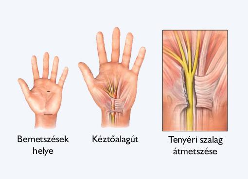 Lézeres visszérműtét - Visszér