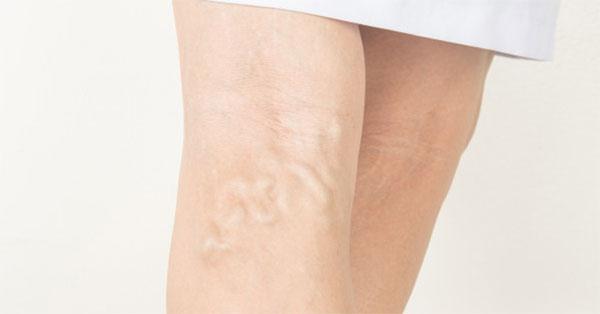 A herevisszér tágulat a spermiumképződést is zavarhatja