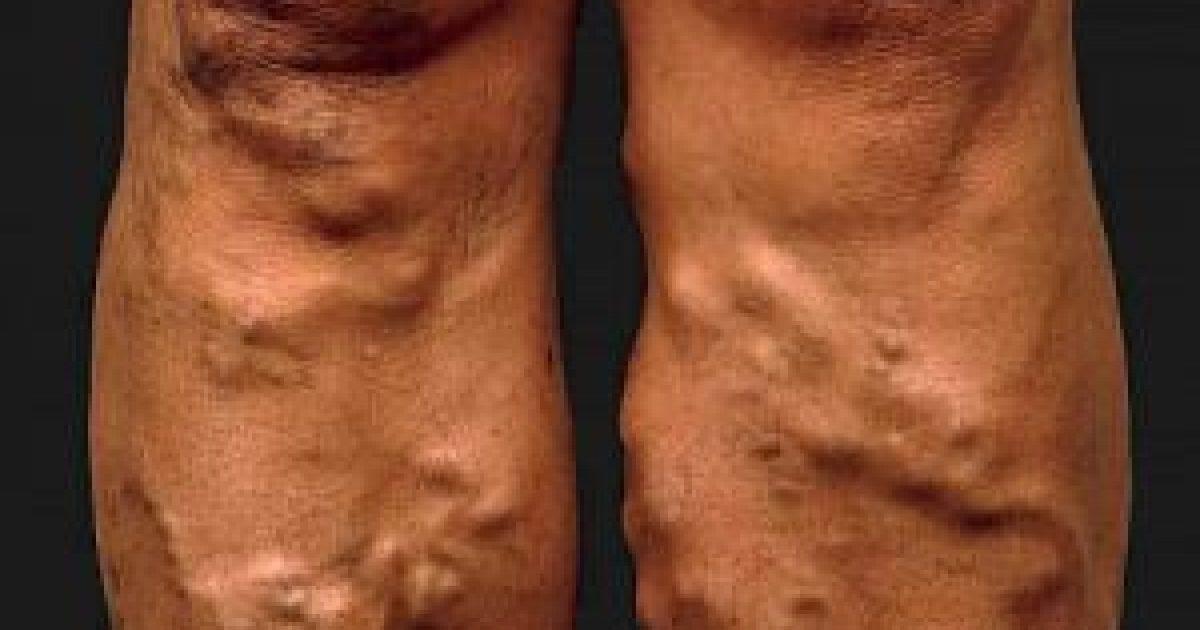 visszér a lábakban alternatív kezelés