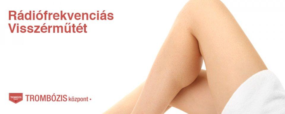 Varicose veins a lábakon kezelés grodno