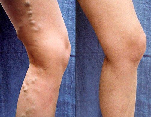 visszér a lábakon kezelés és diéta harisnya visszeres terhességi vélemények alatt