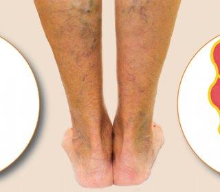 a láb saphena vénája visszér