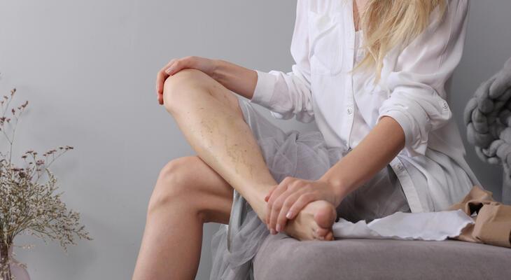 visszér 21 évesen kezelendő a lábak belső vénáinak visszér