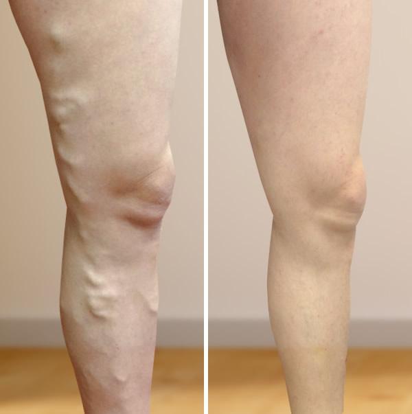 műtét visszér vélemények előtt és után