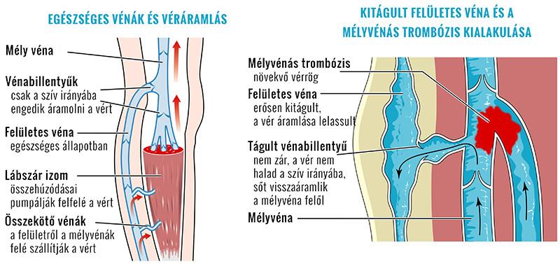 múmia visszeres és thrombophlebitis)