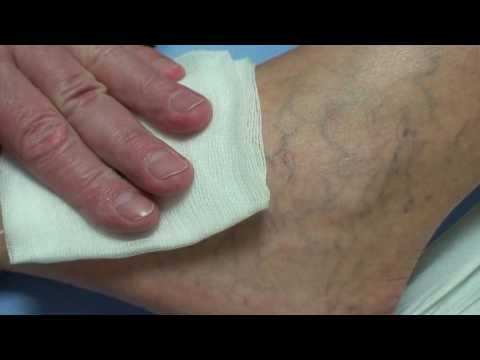 A láb duzzanatának tünetei