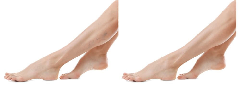 ha a visszér és a láb megég