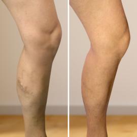 visszér kezelés fotó előtt és után