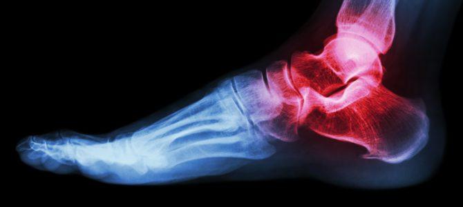 amiatt, amitől a láb fáj a visszér