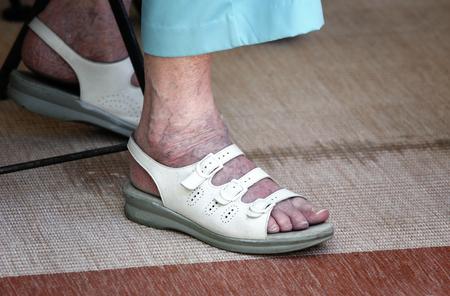 visszér a bokánál
