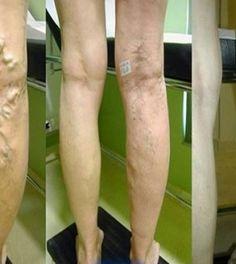 a legjobb kenőcs a visszereken a lábakon készítmények visszér kezelésére