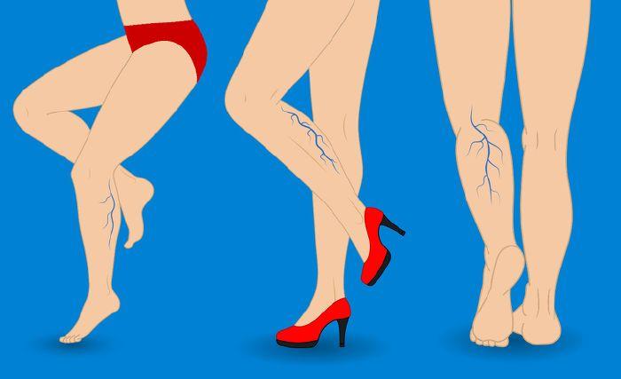 hogyan kell bekenni a visszerek a lábakat