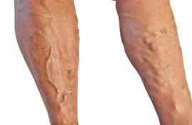 a lábakon visszeres érzések