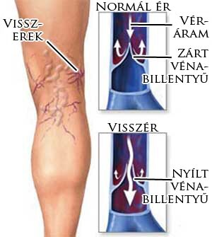 Visszérvonal: Információs vonal - Visszerek anatómiája