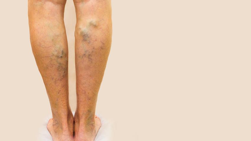 a lábak bekötése visszerek esetén)